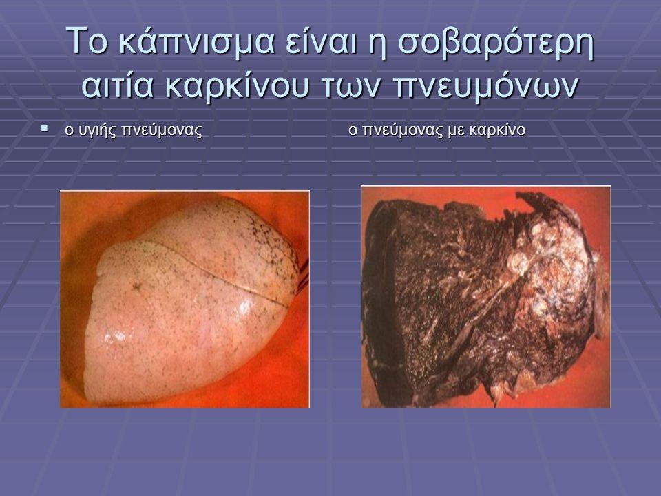 Το κάπνισμα είναι η σοβαρότερη αιτία καρκίνου των πνευμόνων