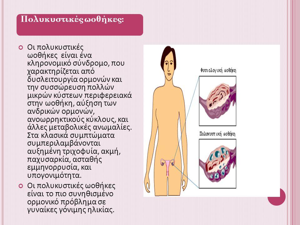 Πολυκυστικές ωοθήκες: