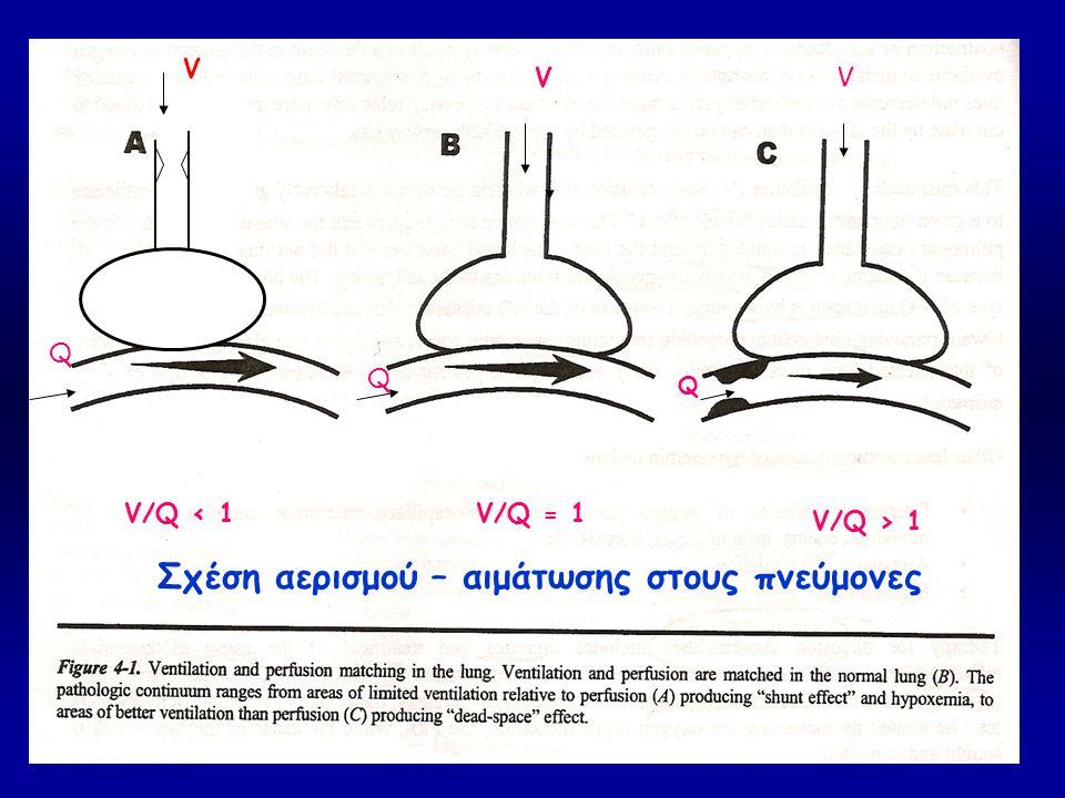 ((( Σχέση αερισμού – αιμάτωσης στους πνεύμονες V V V Q Q V/Q < 1