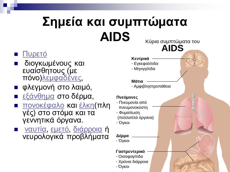 Σημεία και συμπτώματα AIDS