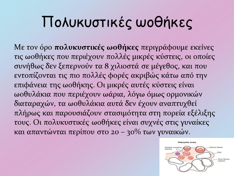 Πολυκυστικές ωοθήκες