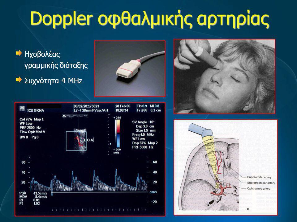 Doppler οφθαλμικής αρτηρίας