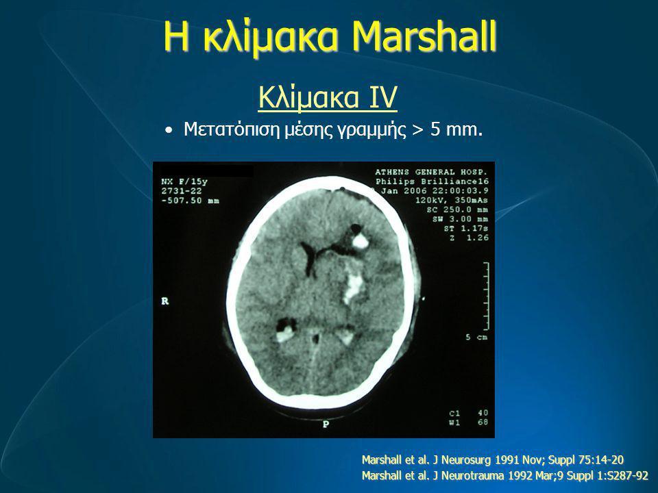 Η κλίμακα Marshall Κλίμακα ΙV Μετατόπιση μέσης γραμμής > 5 mm.