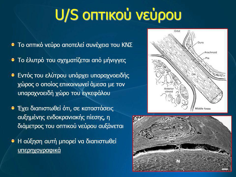 U/S οπτικού νεύρου Το οπτικό νεύρο αποτελεί συνέχεια του ΚΝΣ