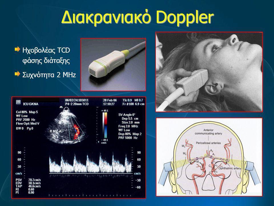 Διακρανιακό Doppler Ηχοβολέας TCD φάσης διάταξης Συχνότητα 2 MHz