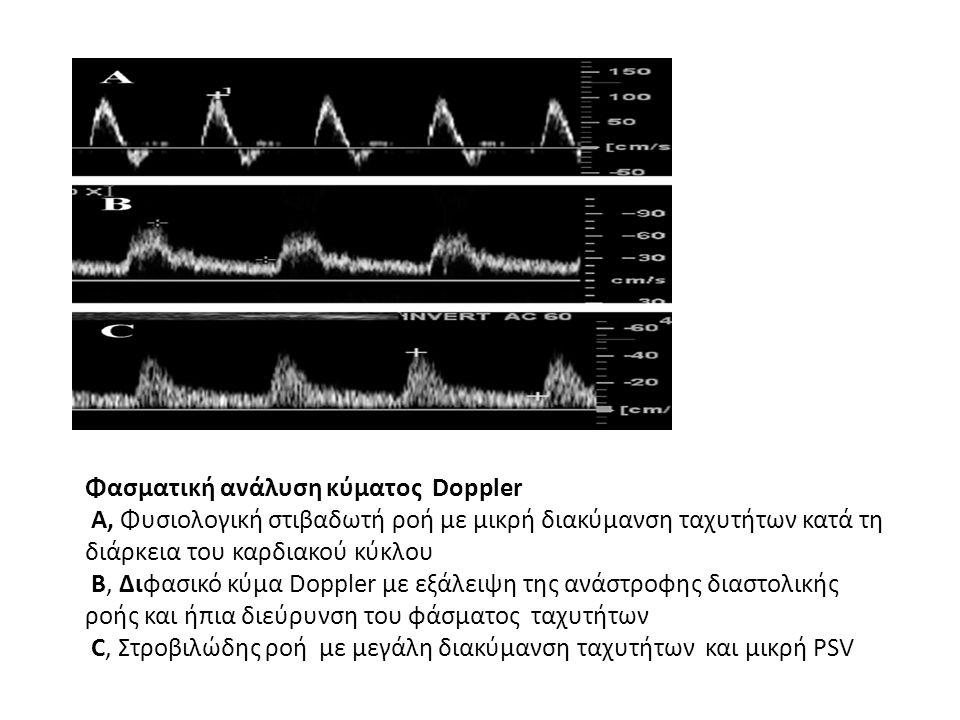 Φασματική ανάλυση κύματος Doppler