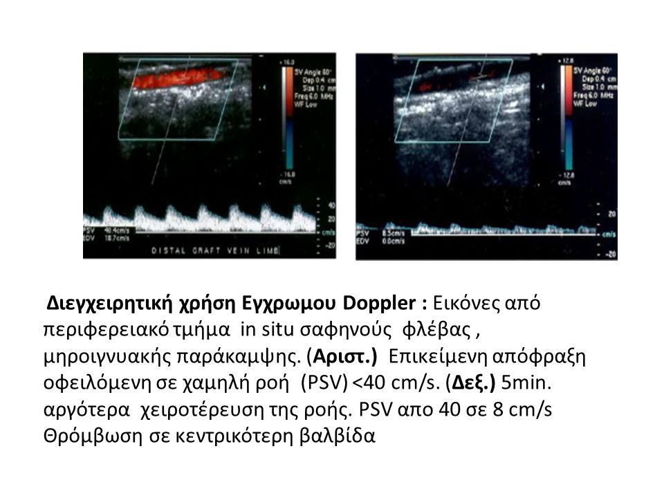 Διεγχειρητική χρήση Εγχρωμου Doppler : Εικόνες από περιφερειακό τμήμα in situ σαφηνούς φλέβας , μηροιγνυακής παράκαμψης.