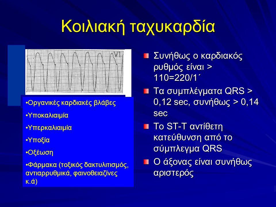 Κοιλιακή ταχυκαρδία Συνήθως ο καρδιακός ρυθμός είναι > 110=220/1΄