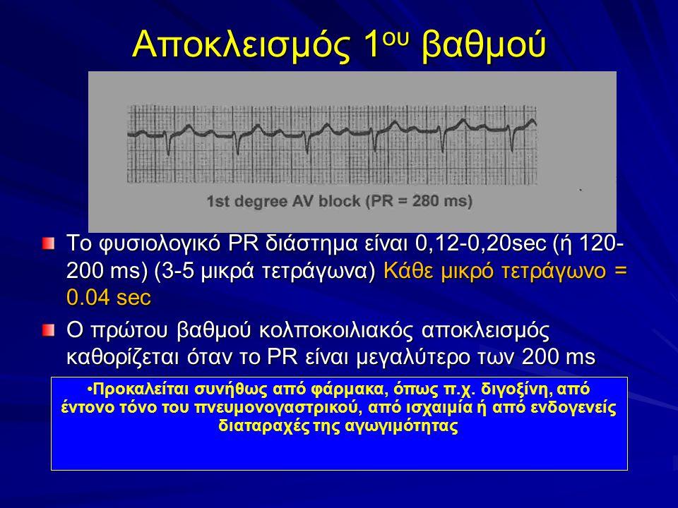 Αποκλεισμός 1ου βαθμού Το φυσιολογικό PR διάστημα είναι 0,12-0,20sec (ή 120-200 ms) (3-5 μικρά τετράγωνα) Κάθε μικρό τετράγωνο = 0.04 sec.