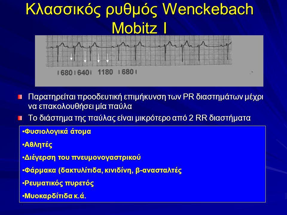 Κλασσικός ρυθμός Wenckebach Mobitz I