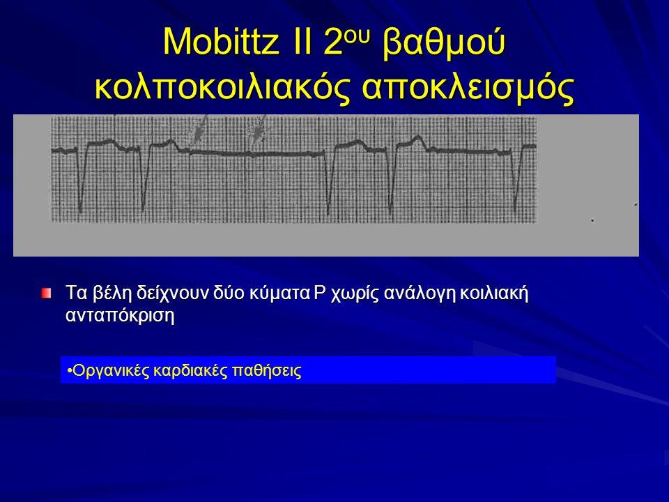 Mobittz II 2ου βαθμού κολποκοιλιακός αποκλεισμός
