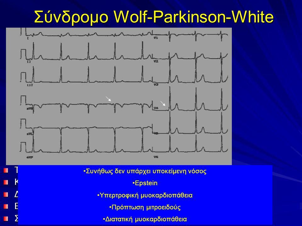 Σύνδρομο Wolf-Parkinson-White