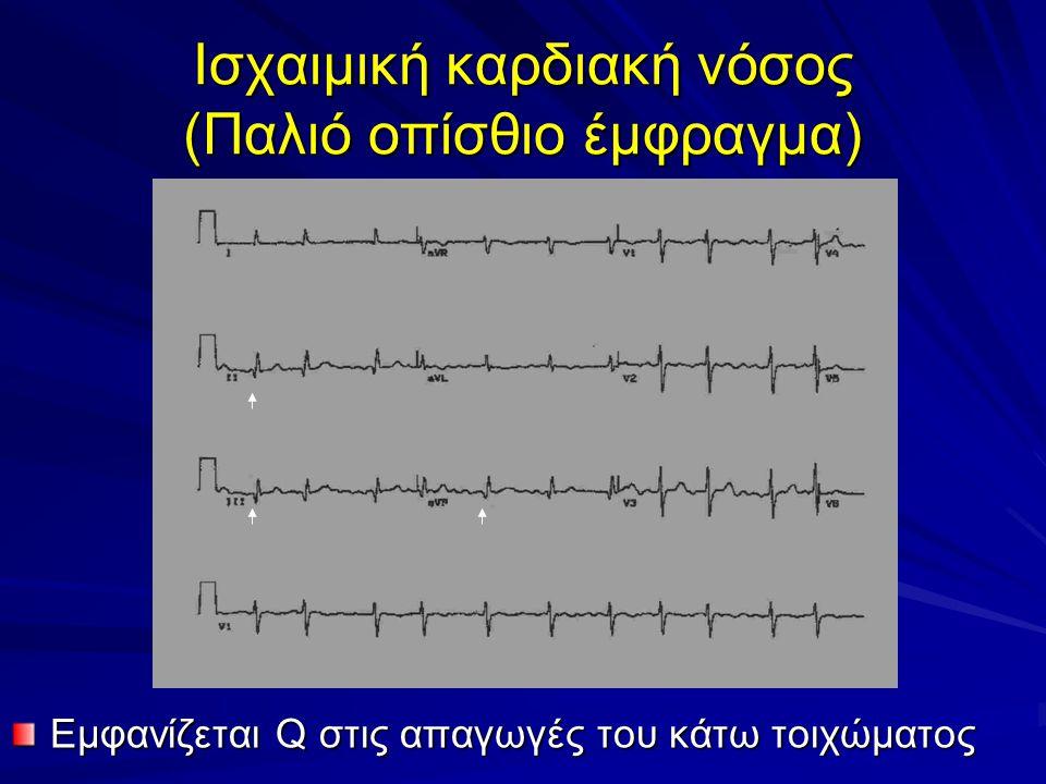 Ισχαιμική καρδιακή νόσος (Παλιό οπίσθιο έμφραγμα)