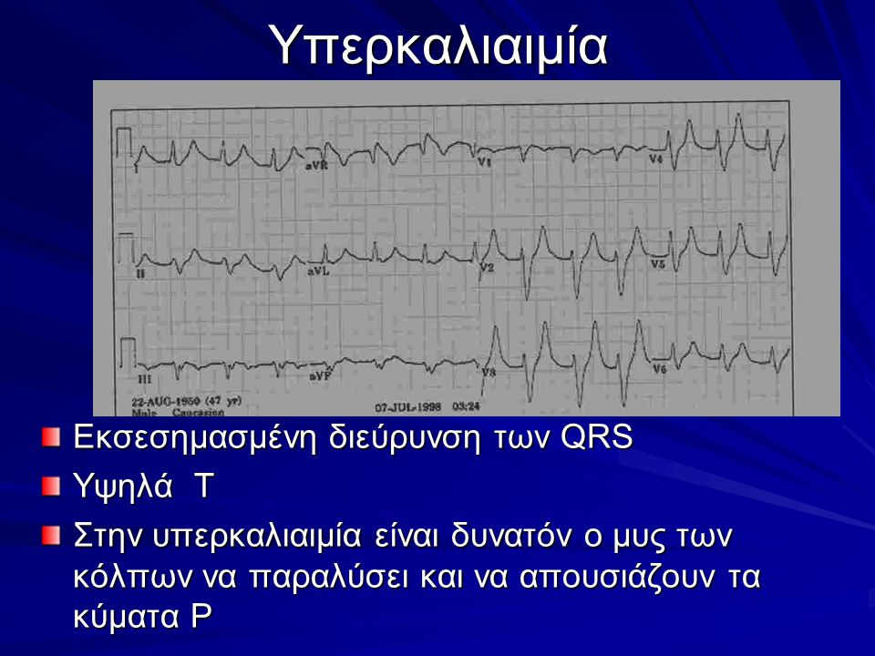Υπερκαλιαιμία Εκσεσημασμένη διεύρυνση των QRS Υψηλά Τ