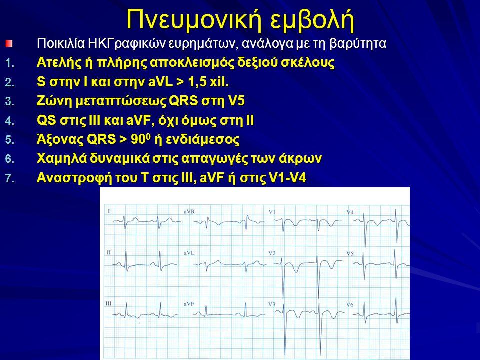 Πνευμονική εμβολή Ποικιλία ΗΚΓραφικών ευρημάτων, ανάλογα με τη βαρύτητα. Ατελής ή πλήρης αποκλεισμός δεξιού σκέλους.