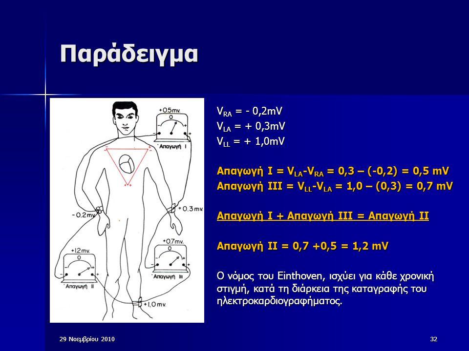 Παράδειγμα VRA = - 0,2mV VLA = + 0,3mV VLL = + 1,0mV