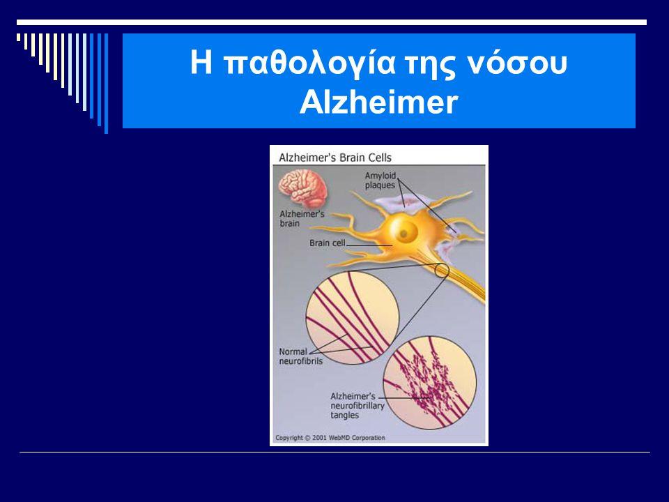 Η παθολογία της νόσου Alzheimer