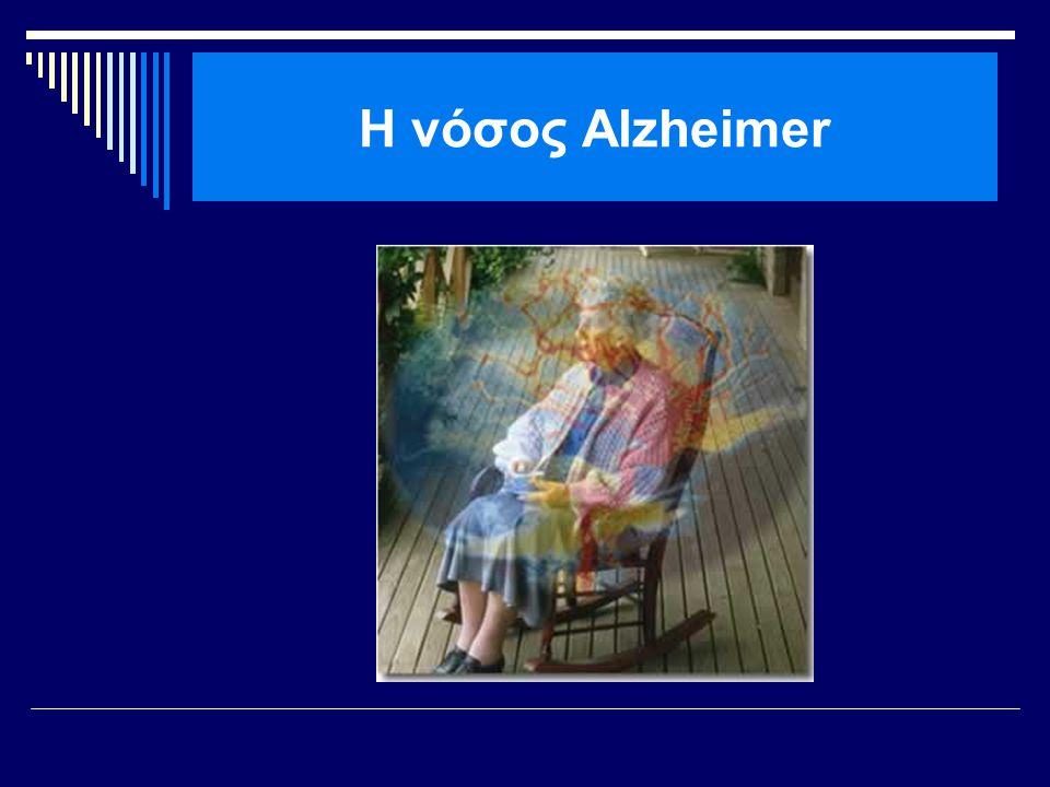 H νόσος Alzheimer