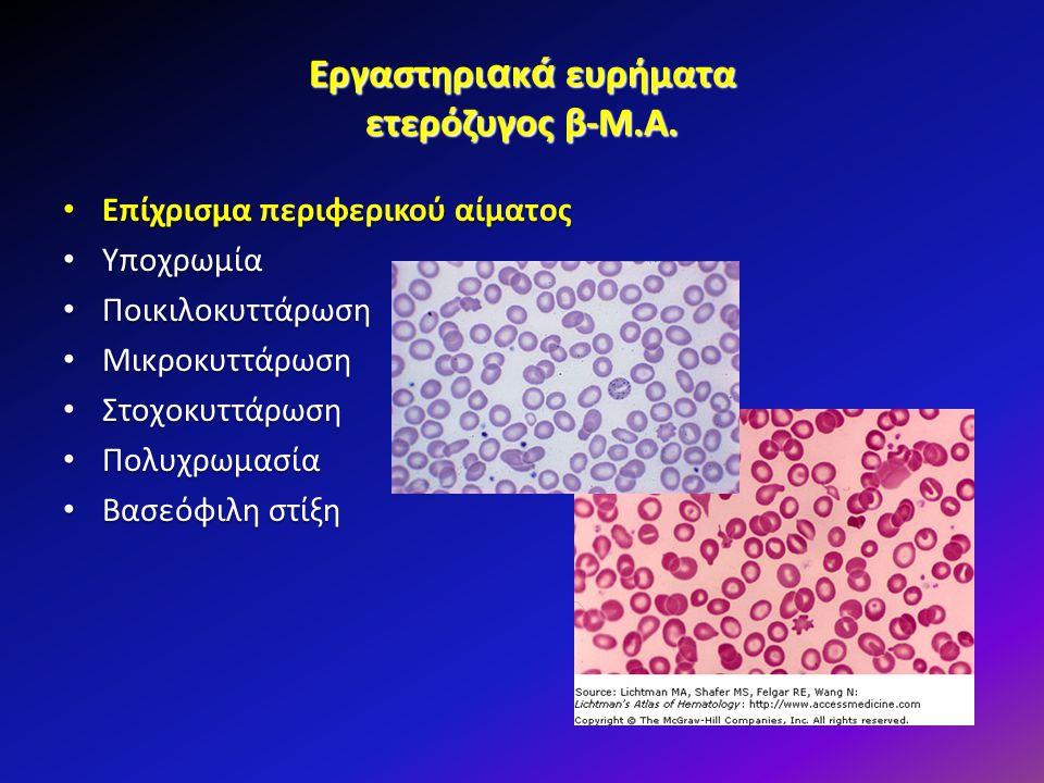 Εργαστηριακά ευρήματα ετερόζυγος β-Μ.Α.