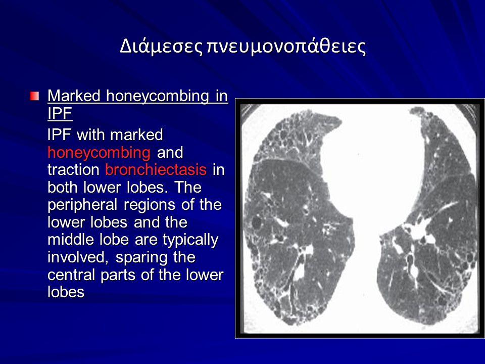 Διάμεσες πνευμονοπάθειες