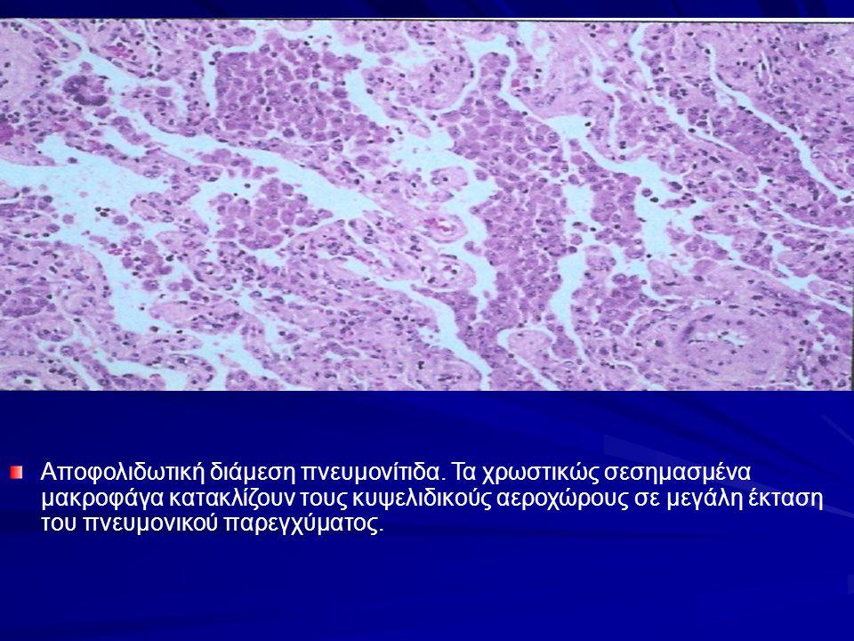 Αποφολιδωτική διάμεση πνευμονίτιδα