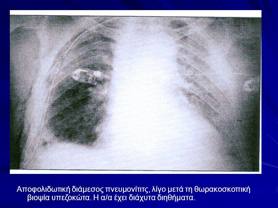 Αποφολιδωτική διάμεσος πνευμονίτιτς, λίγο μετά τη θωρακοσκοπική βιοψία υπεζοκώτα.