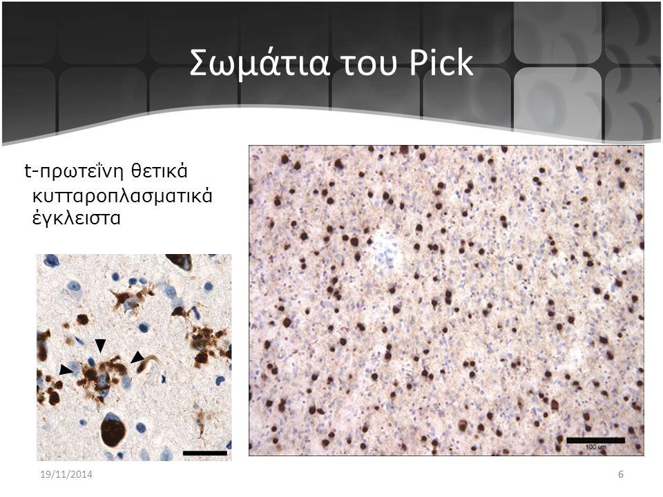 Σωμάτια του Pick t-πρωτεΐνη θετικά κυτταροπλασματικά έγκλειστα