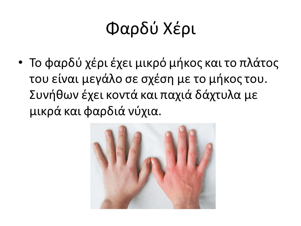 Φαρδύ Χέρι