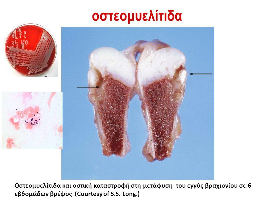 οστεομυελίτιδα Οστεομυελίτιδα και οστική καταστροφή στη μετάφυση του εγγύς βραχιονίου σε 6 εβδομάδων βρέφος (Courtesy of S.S.