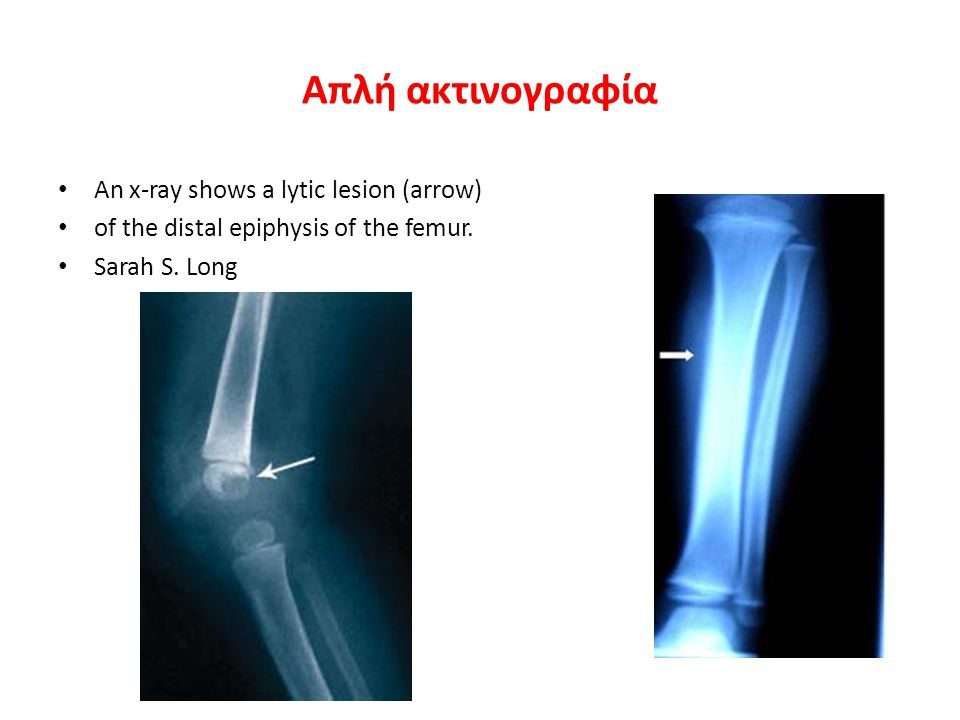 Απλή ακτινογραφία An x-ray shows a lytic lesion (arrow)