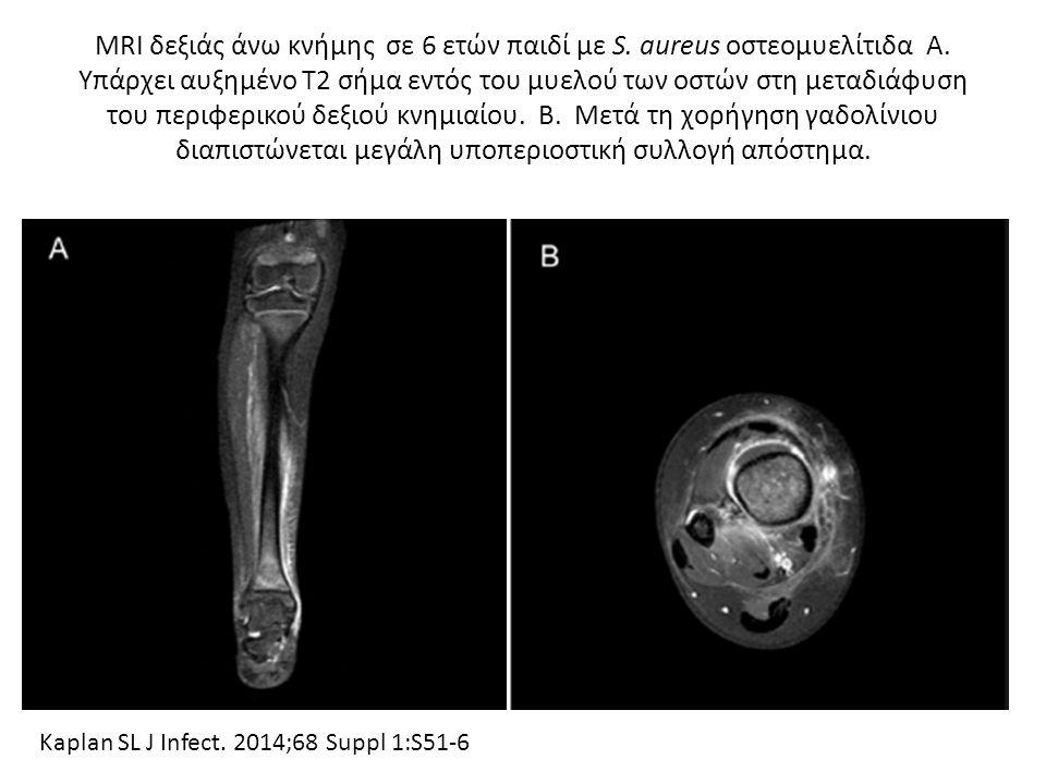 MRI δεξιάς άνω κνήμης σε 6 ετών παιδί με S. aureus οστεομυελίτιδα Α