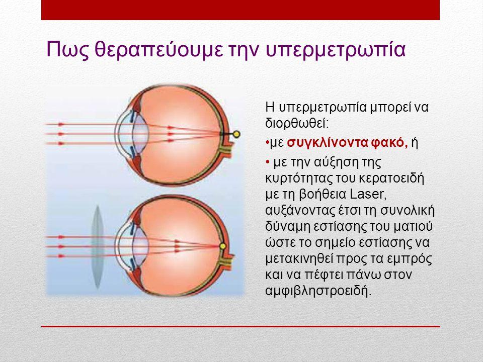 Πως θεραπεύουμε την υπερμετρωπία