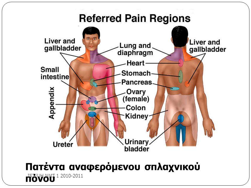 Πατέντα αναφερόμενου σπλαχνικού πόνου