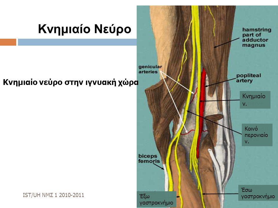 Κνημιαίο Νεύρο Κνημιαίο νεύρο στην ιγνυακή χώρα Κνημιαίο ν.