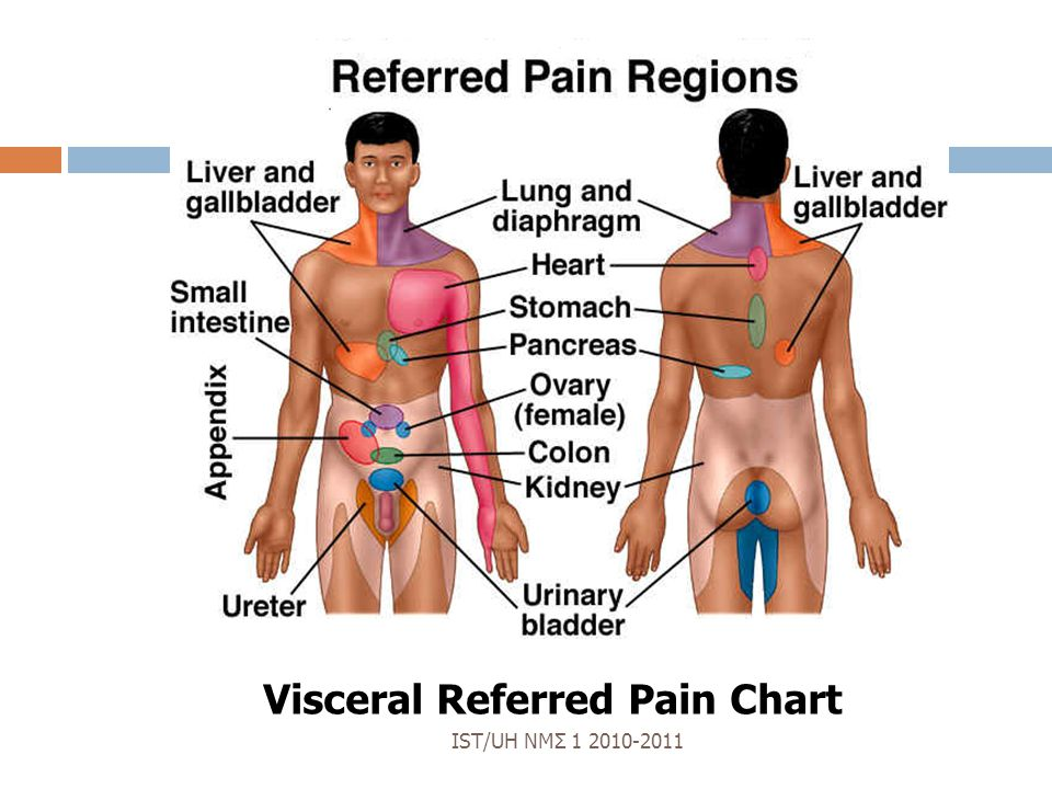 Visceral Referred Pain Chart