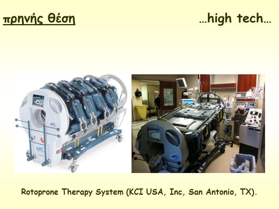 Rotoprone Therapy System (KCI USA, Inc, San Antonio, TX).