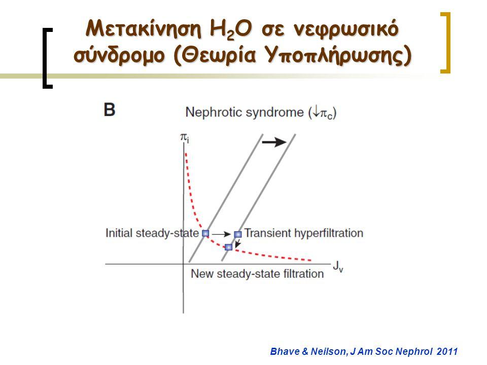 Μετακίνηση H2O σε νεφρωσικό σύνδρομο (Θεωρία Υποπλήρωσης)