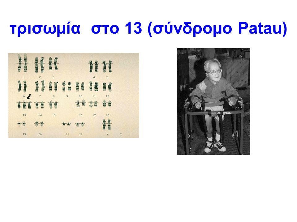 τρισωμία στο 13 (σύνδρομο Patau)
