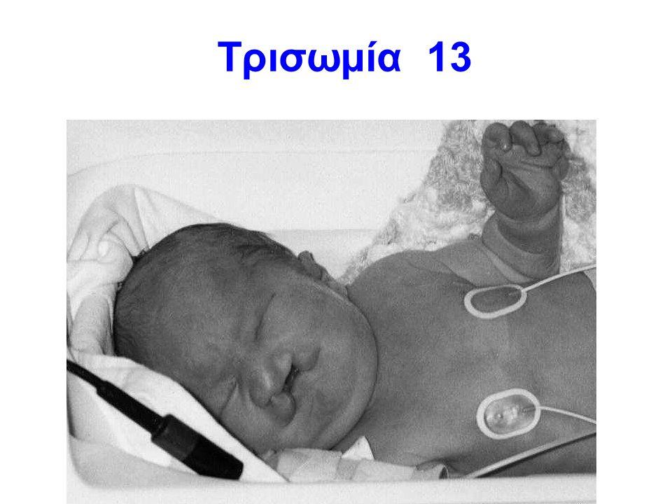 Τρισωμία 13