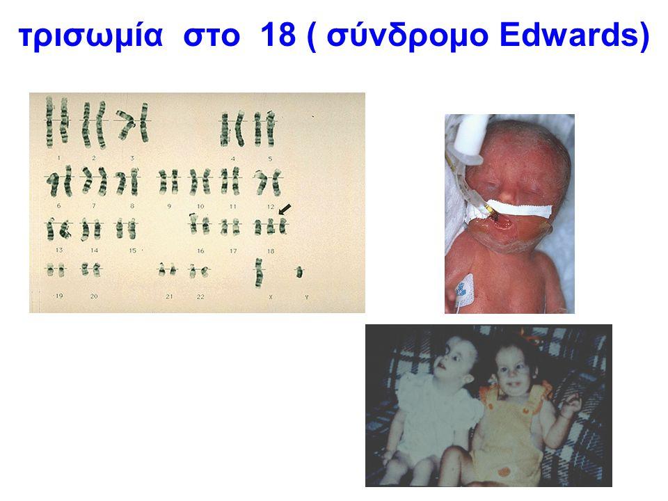τρισωμία στο 18 ( σύνδρομο Edwards)