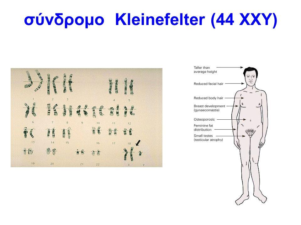 σύνδρομο Kleinefelter (44 ΧΧΥ)