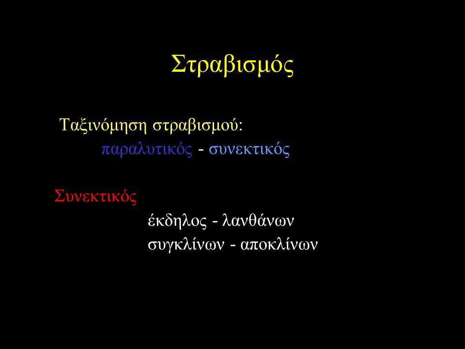 Στραβισμός Ταξινόμηση στραβισμού: παραλυτικός - συνεκτικός Συνεκτικός