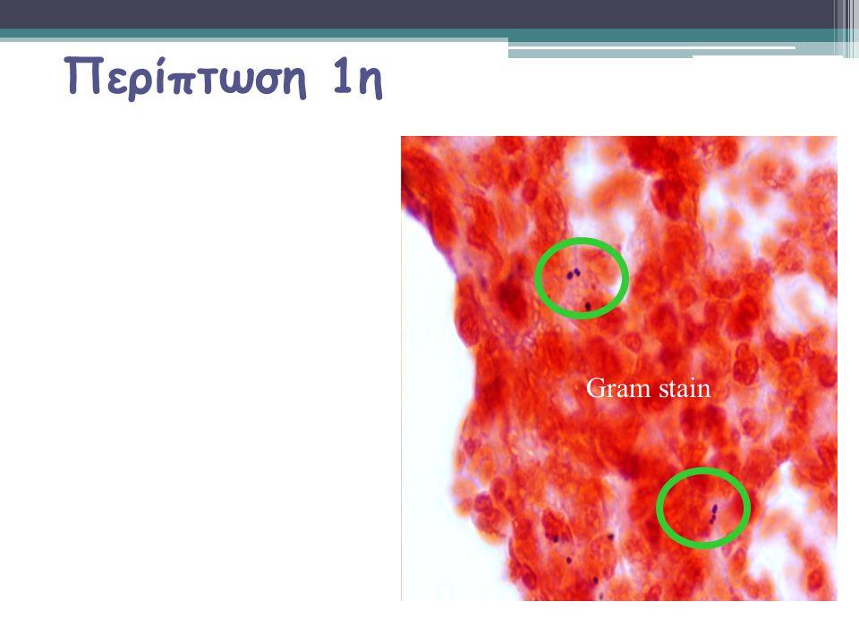 Περίπτωση 1η Gram stain