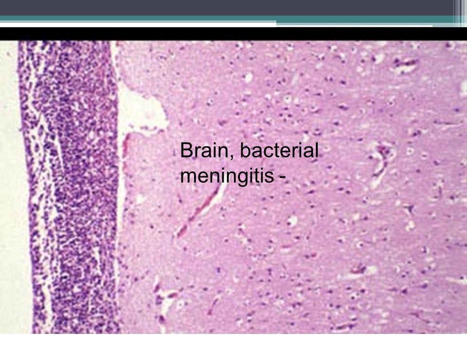 Brain, bacterial meningitis -