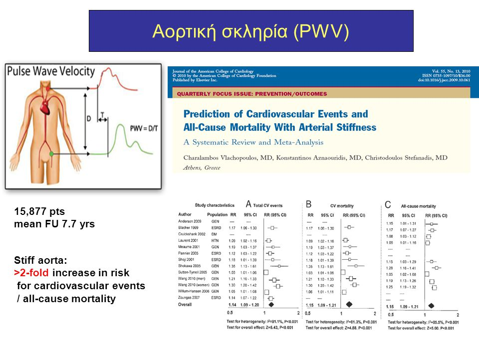 Αορτική σκληρία (PWV) 15,877 pts mean FU 7.7 yrs Stiff aorta: