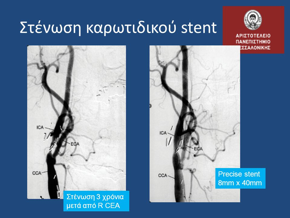 Στένωση καρωτιδικού stent
