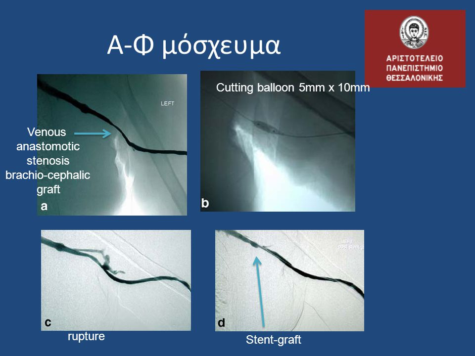Α-Φ μόσχευμα Cutting balloon 5mm x 10mm Venous anastomotic stenosis