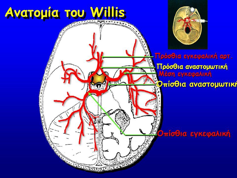 Ανατομία του Willis Οπίσθια αναστομωτική Οπίσθια εγκεφαλική