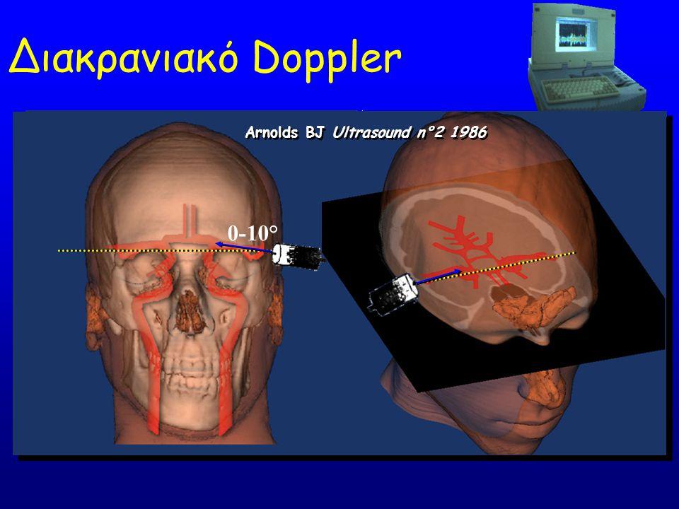Διακρανιακό Doppler Arnolds BJ Ultrasound n°2 1986 0-10°