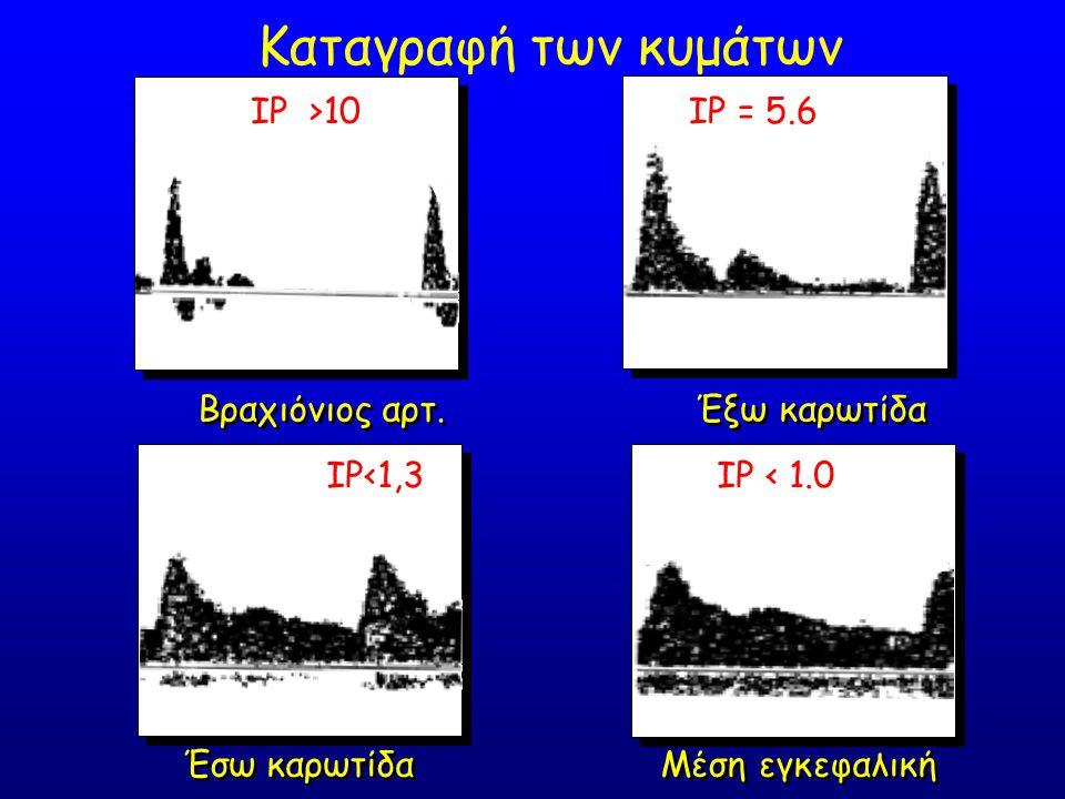Καταγραφή των κυμάτων IP >10 IP = 5.6 Βραχιόνιος αρτ. Έξω καρωτίδα